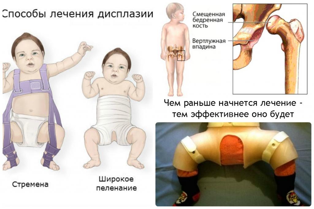 Дисплазия тазобедренных суставов фото, стремена Павлика
