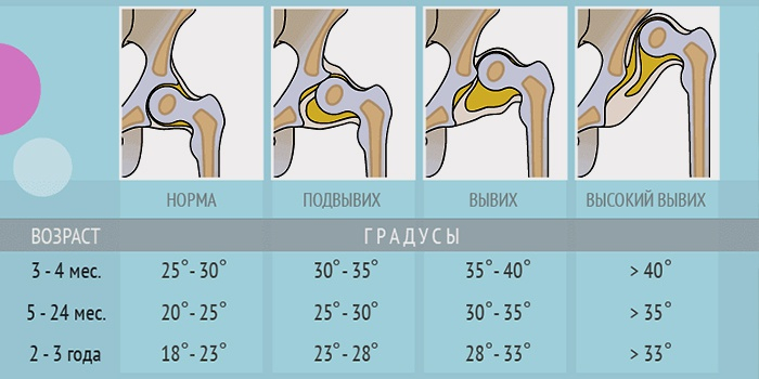 Узи тазобедренных суставов при дисплазии болят суставы после шпагата