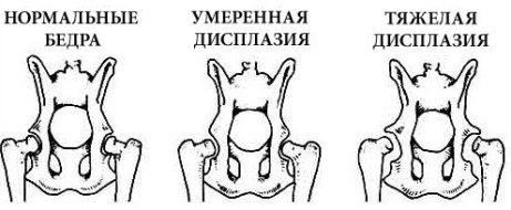 Степени дисплазии тазобедренных суставов