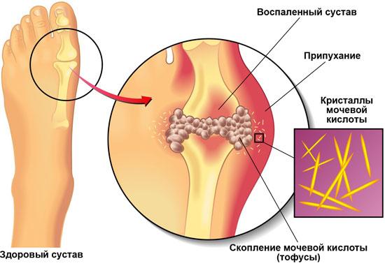 Лечение подагры суставов