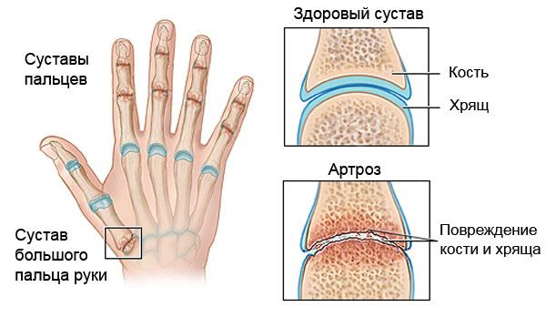 Причины остеоартроза суставов
