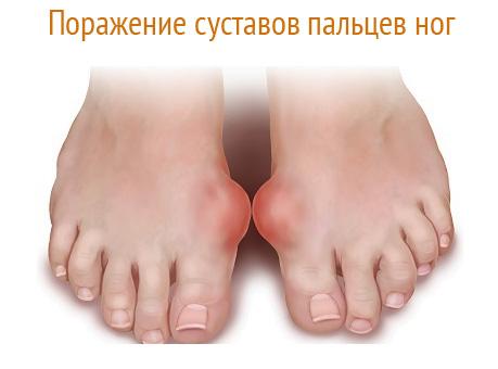 Симптомы подагры суставов