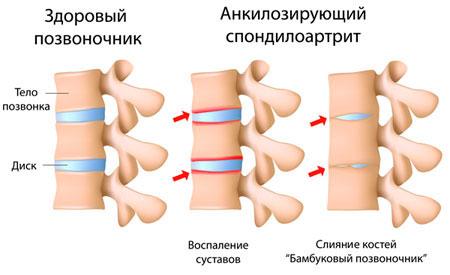 Лечение аноклизирующего спондилоартрита позвоночника
