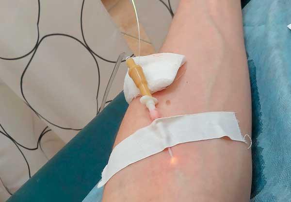 Ультрафиолетовое облучение крови УФОК